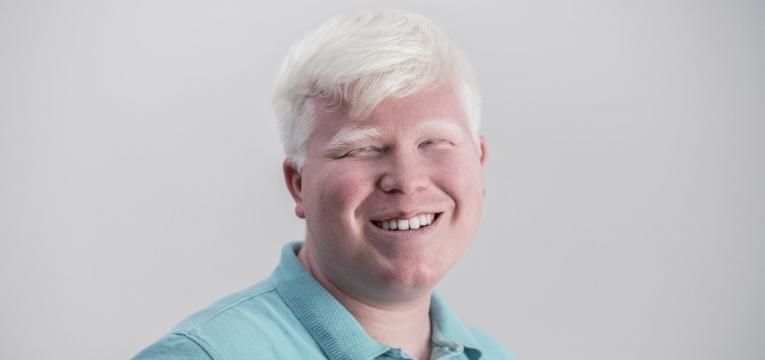 albino pigmentação