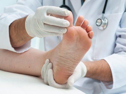 Médico a tratar pé de atleta