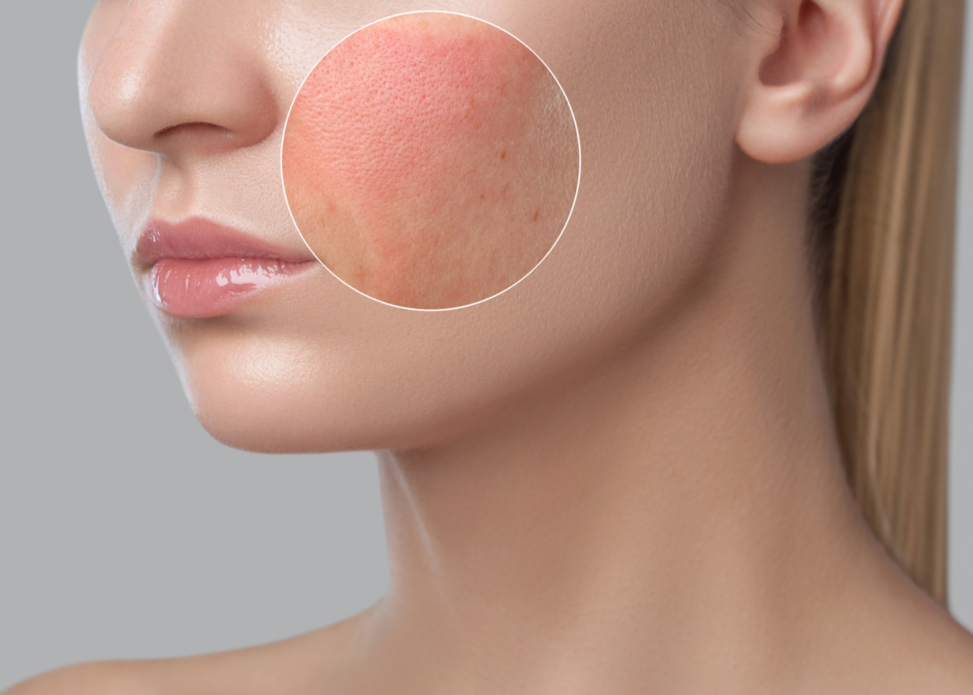 pele com poros dilatados