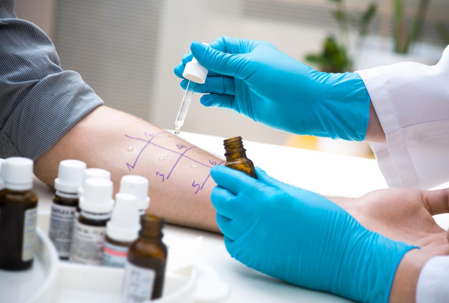 teste das picadas para alergias