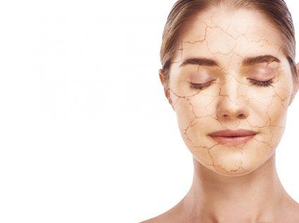 Mulher com pele seca