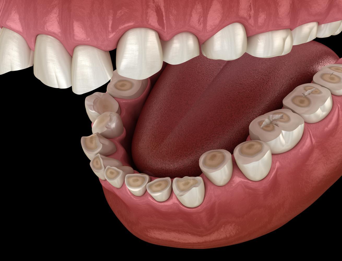 Consequência do bruxismo nos dentes