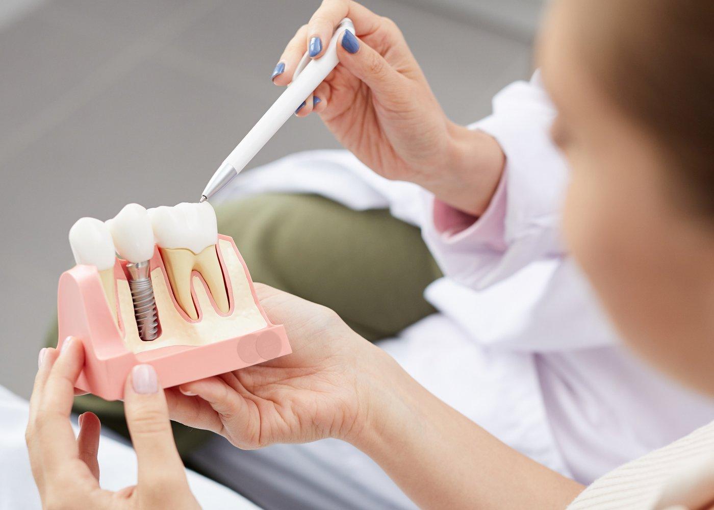 dentista com maquete de implante dentário
