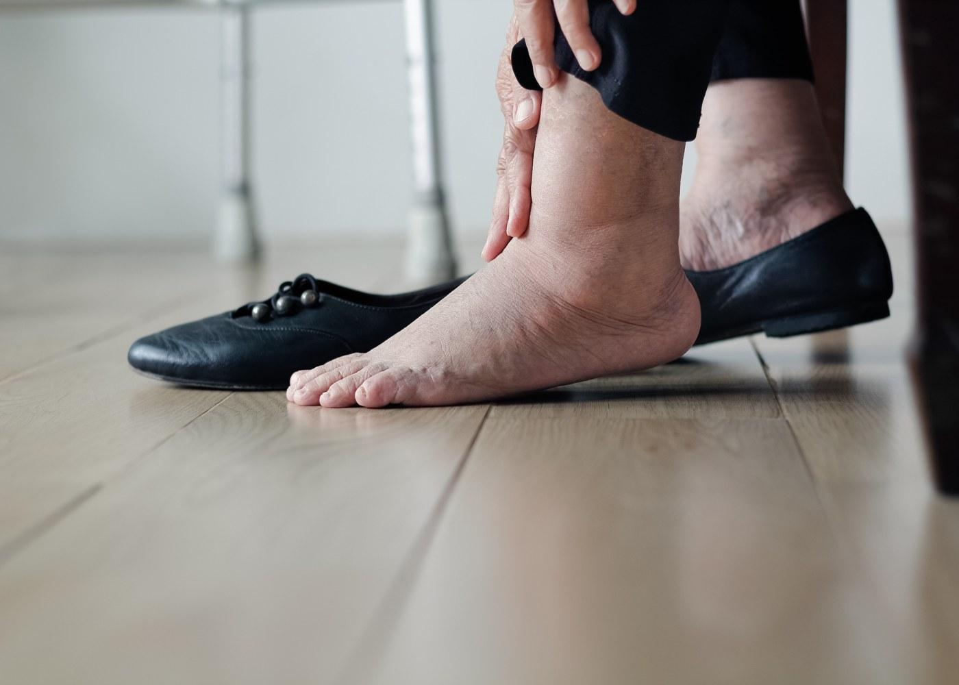 Mulher com pé diabético
