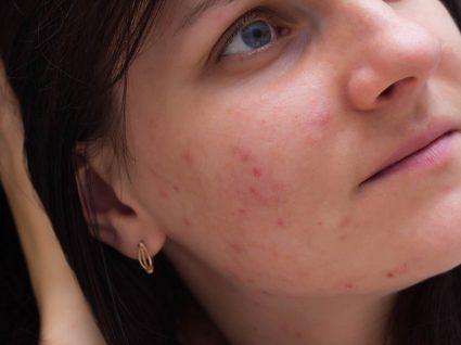 Mulher com manchas e borbulhas na cara
