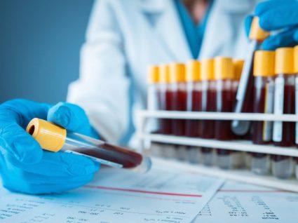 Médica a interpretar as análises clínicas