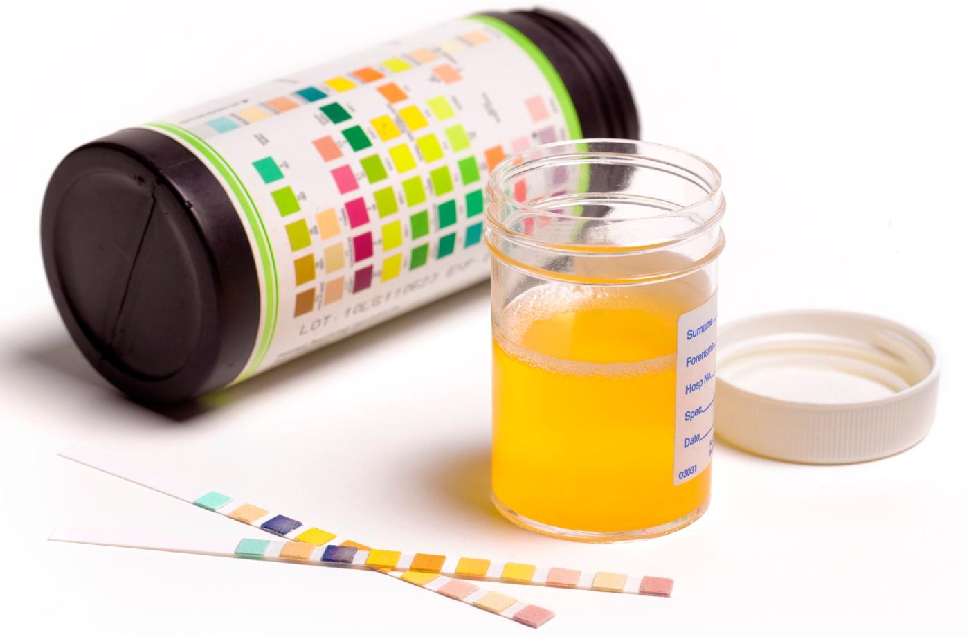 análises à urina