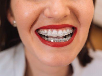 Mulher com maquilhagem para quem usa aparelho dentário