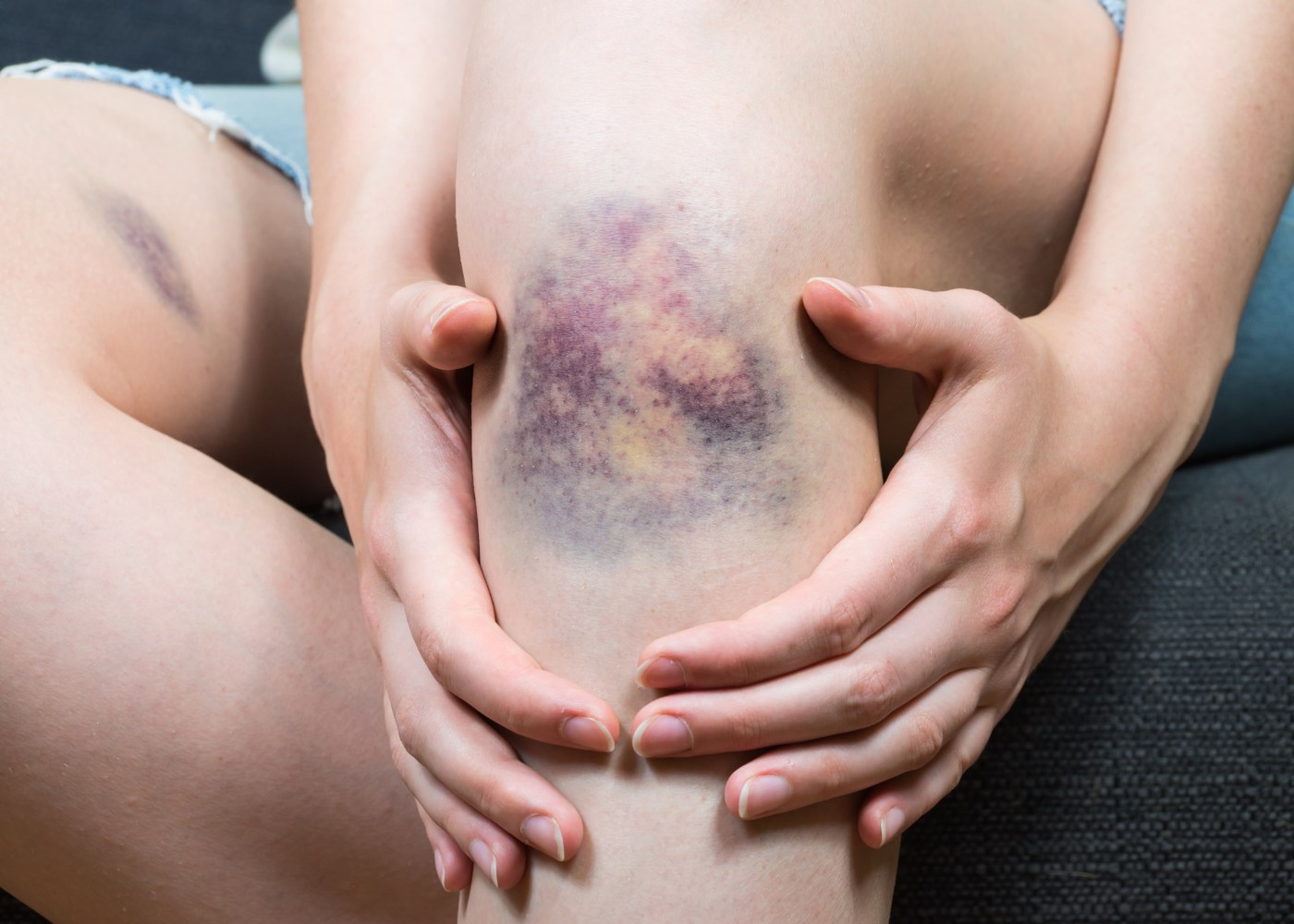 Mulher com nódoas negras na perna