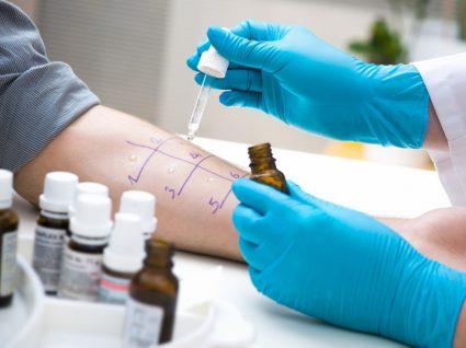 fazer testes a alergias