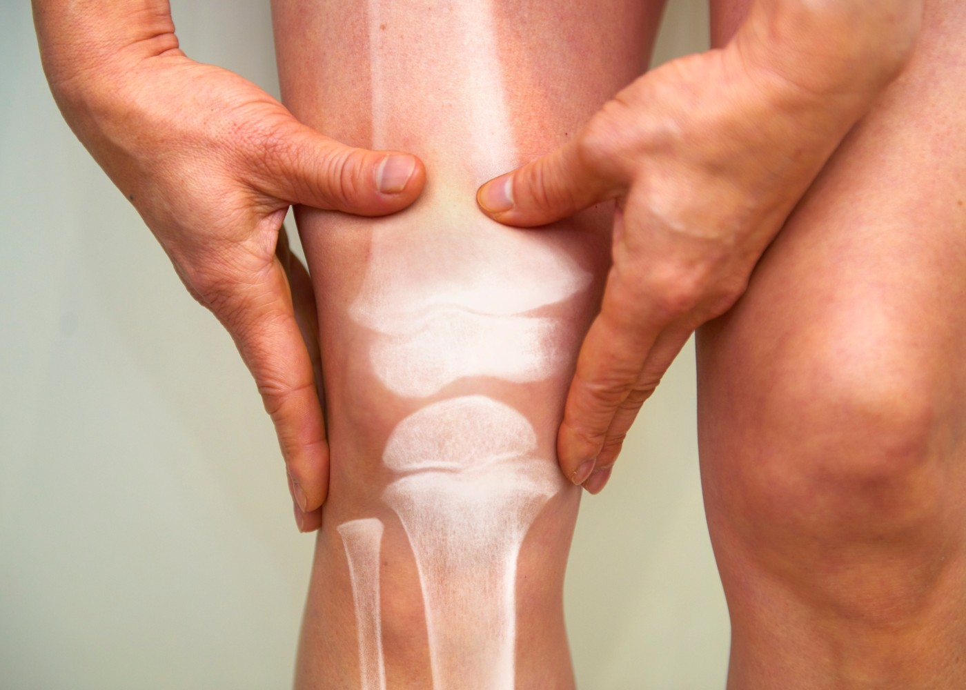 Radiografia de artrite reumatoide