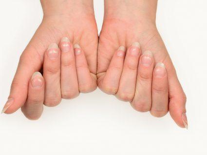 unhas das mãos com manchas brancas