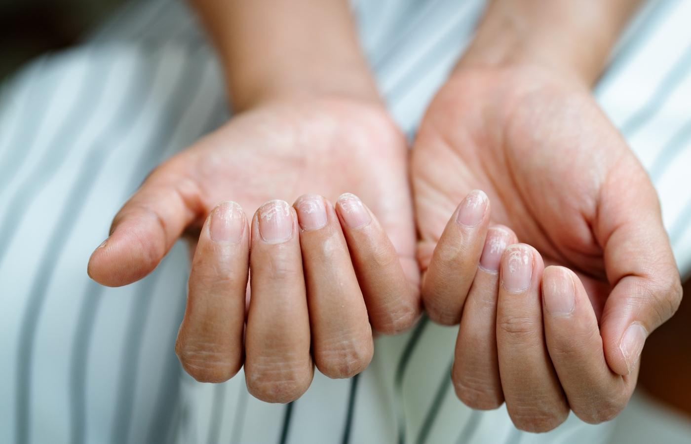 unhas das mãos com manchas brancas ou leuconiquia
