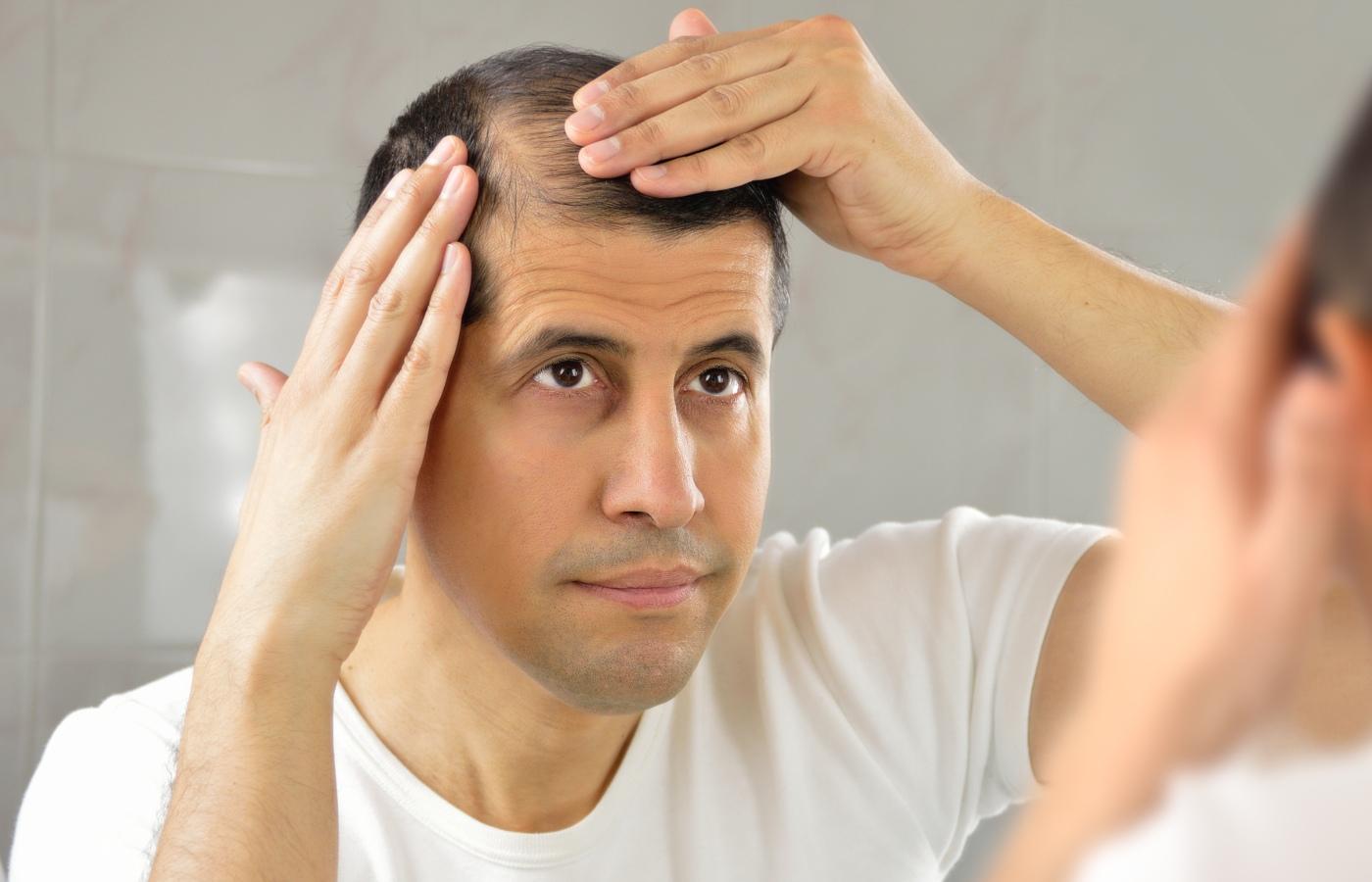 homem com alopecia a ver-se ao espelho