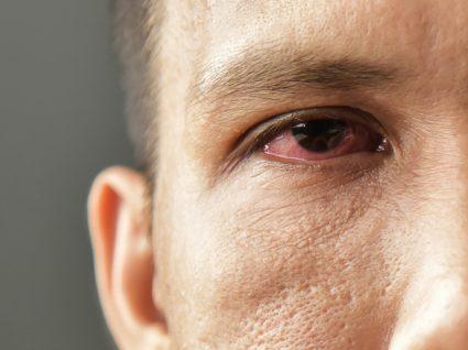 homem com olho vermelho