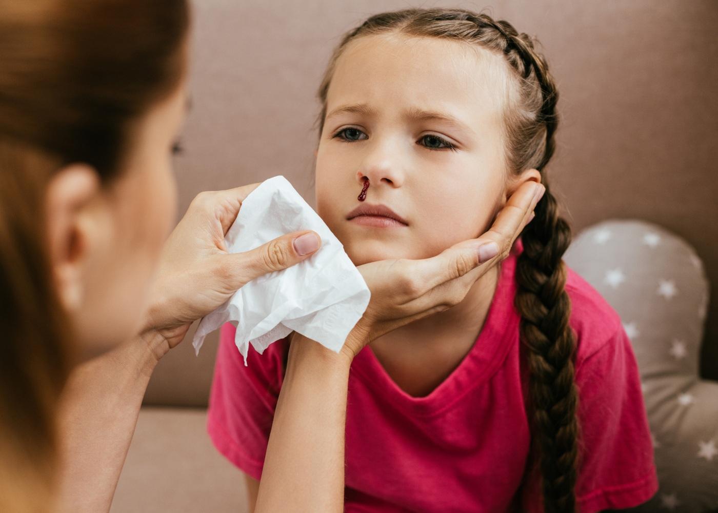 criança a sangrar do nariz