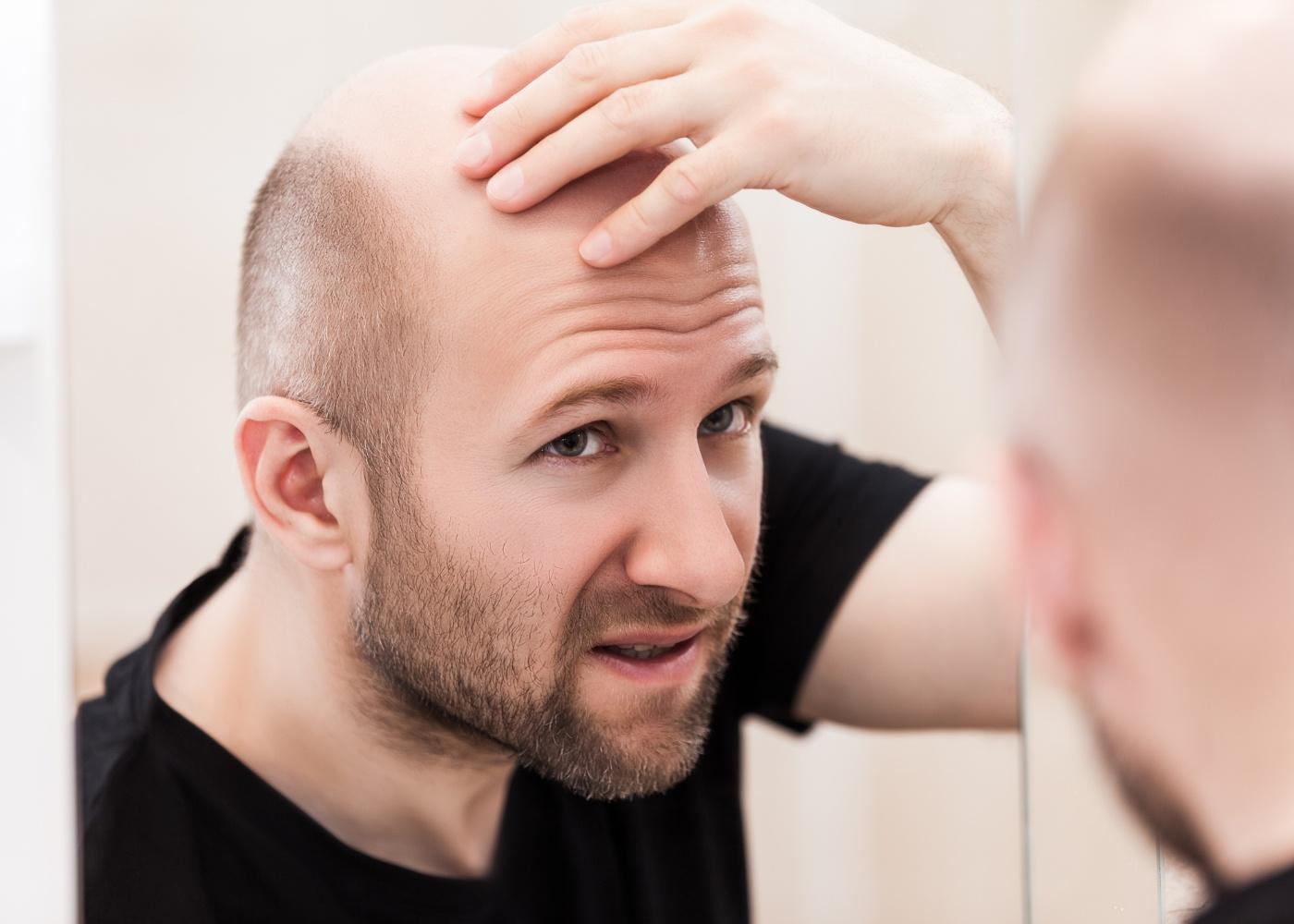 Homem a examinar a careca